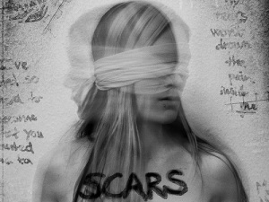 Cover Art Scars (2014)